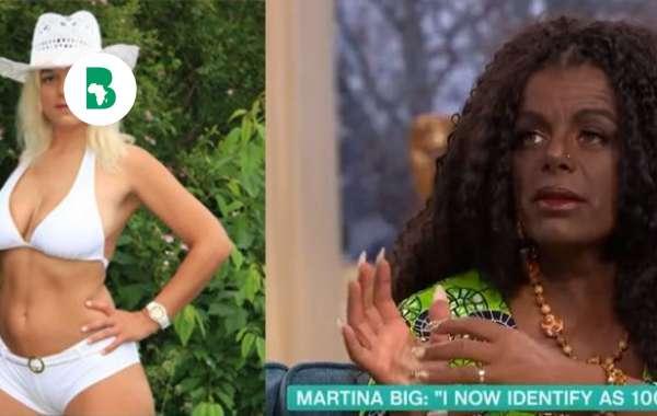 Martina Big, la femme blanche qui croit pouvoir avoir des enfants noirs après des injections de mélanine
